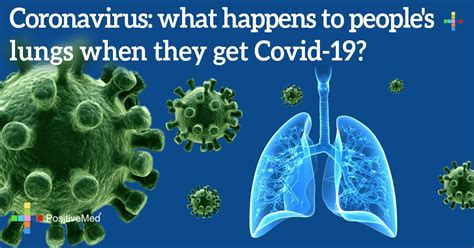Coronavirus: What Happens to People's Lungs When They Get